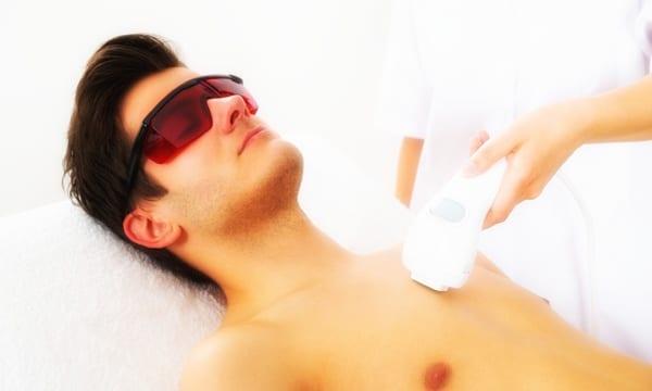 Depilación definitiva láser para hombres