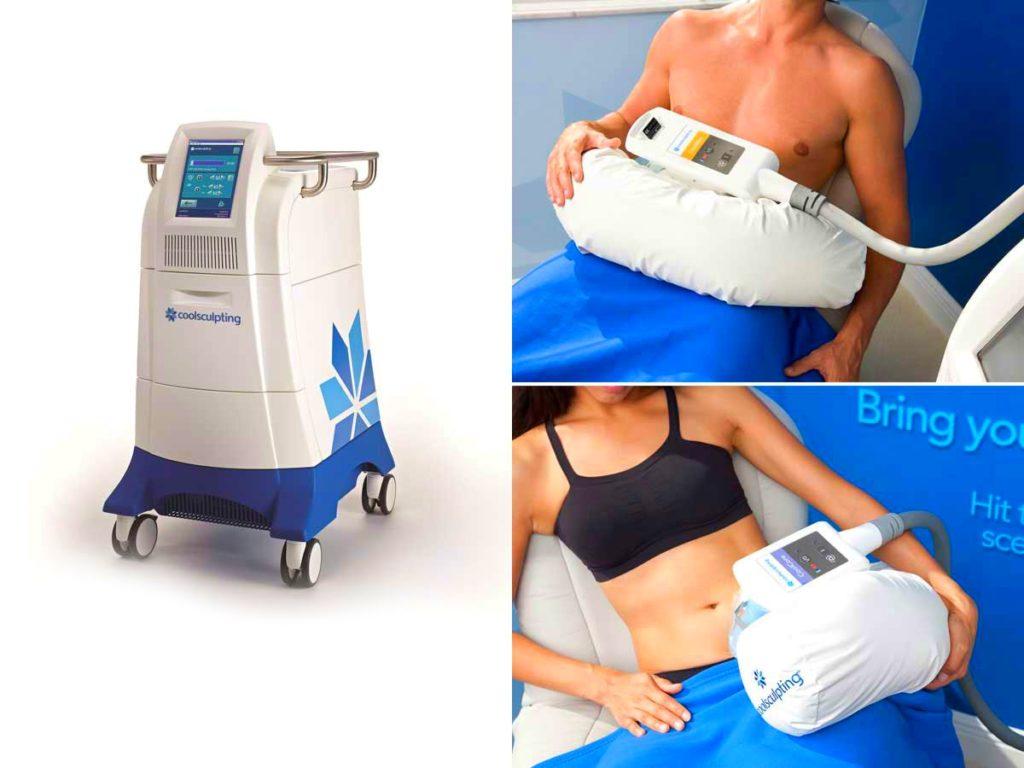 Tratamiento coolsculpting